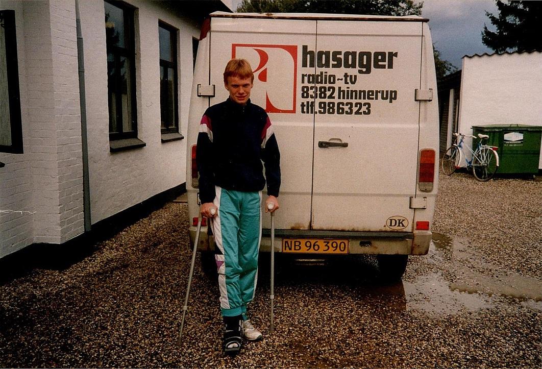 Ulrik brækkede et ben på Knutstorp i efteråret 1993 og ses her udenfor Hinnerup Kro.